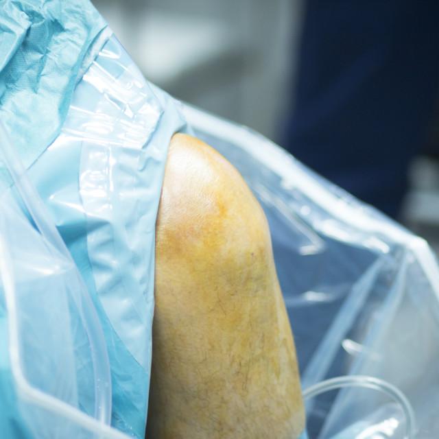 """Hospital orthopedic surgery operating room"" stock image"