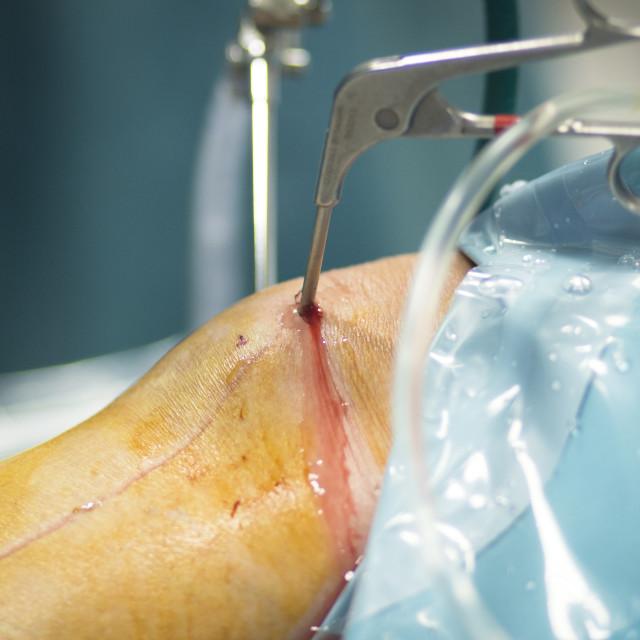 """Orthopedics knee surgery hospital operation"" stock image"