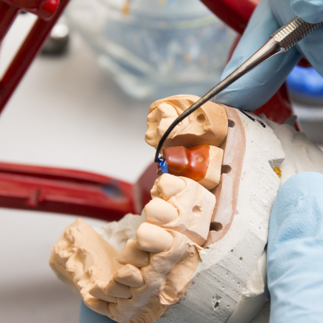 """""""hands of dentist working on a dental implant"""" stock image"""