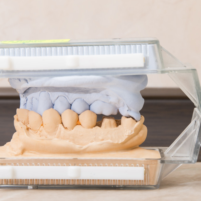 """Dental casting gypsum models plaster"" stock image"