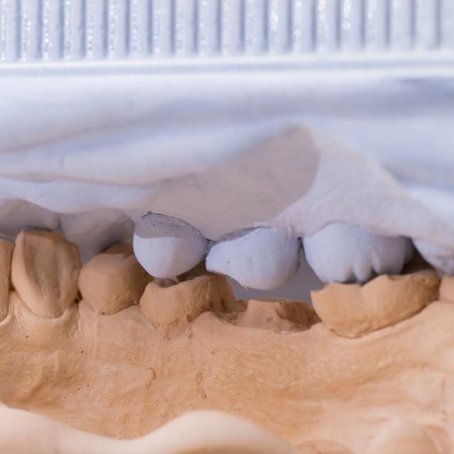 """Dental Mold For Prosthetic Teeth"" stock image"