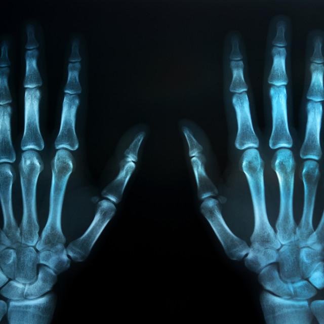 """human hands x ray"" stock image"