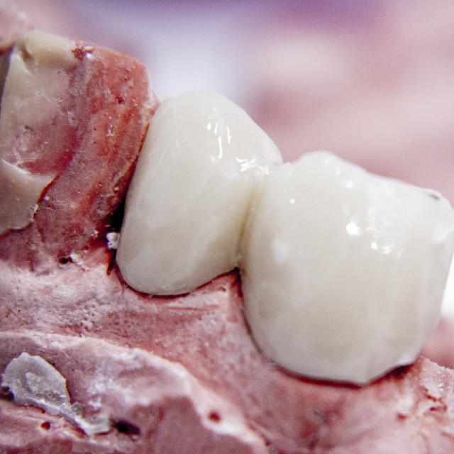 """Dental prosthetics clay tooth mold"" stock image"
