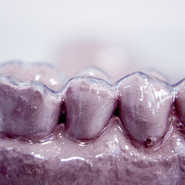 """Dental prosthetics clay tooth mold"" stock image"