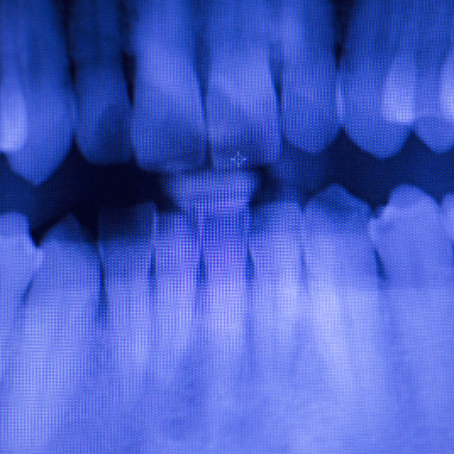 """Dental teeth filling dentists xray scan"" stock image"
