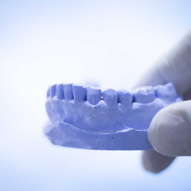 """""""Dentist's dental tooth mold"""" stock image"""