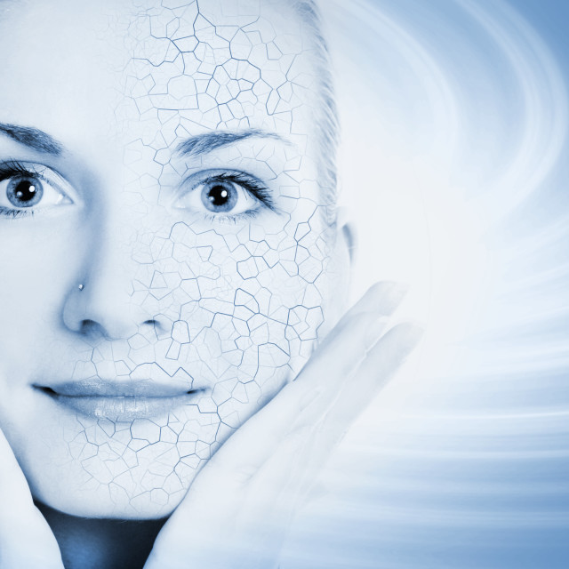 """""""Girls face with half healthy and half itchy, dry skin"""" stock image"""
