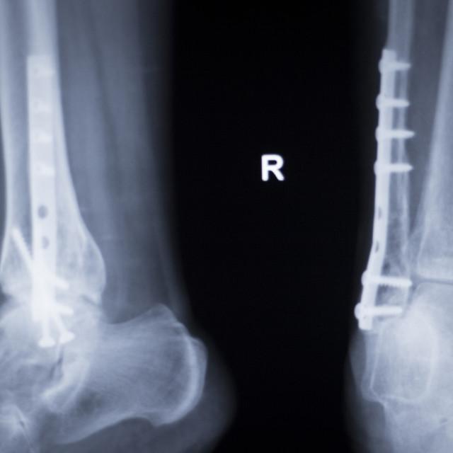 """Ankle injury metal implant xray scan"" stock image"