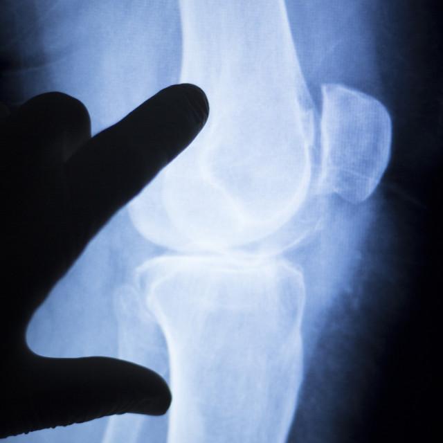 """""""Knee injury surgeon xray scan"""" stock image"""