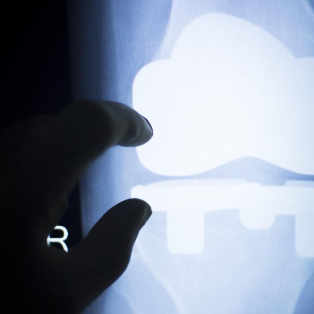 """""""Knee injury metal implant xray scan"""" stock image"""