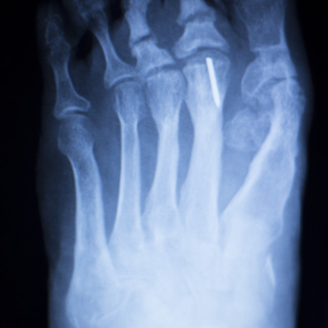 """""""Foot toes metal implant xray scan"""" stock image"""