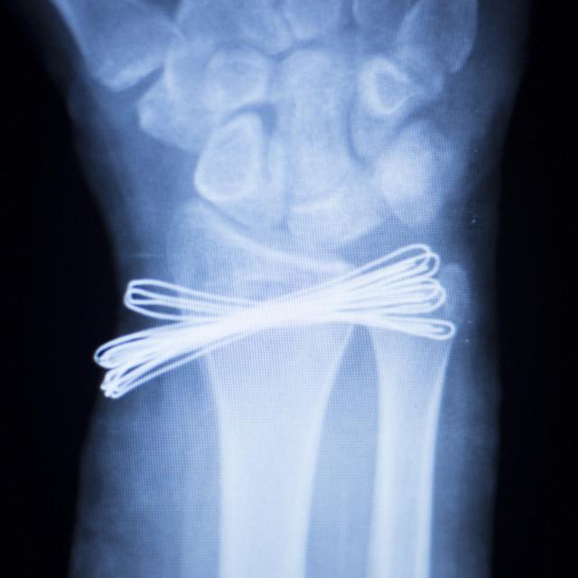 """""""Wrist injury metal implant xray scan"""" stock image"""