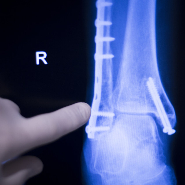 """""""Foot ankle metal implant xray scan"""" stock image"""