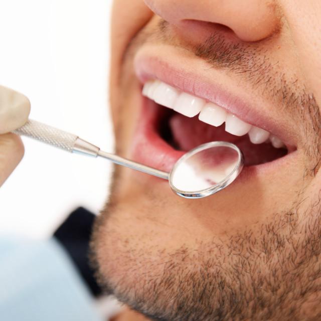 """""""Man doing teeth checkup at dentist's surgery"""" stock image"""