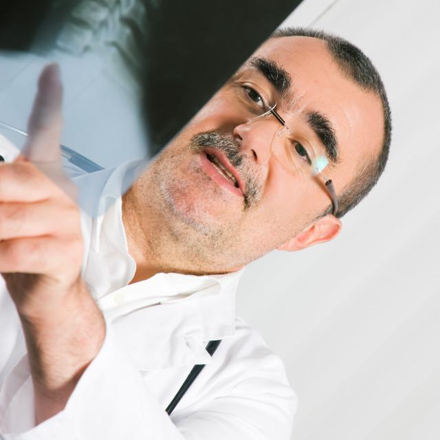 """Doctor examining x-ray"" stock image"