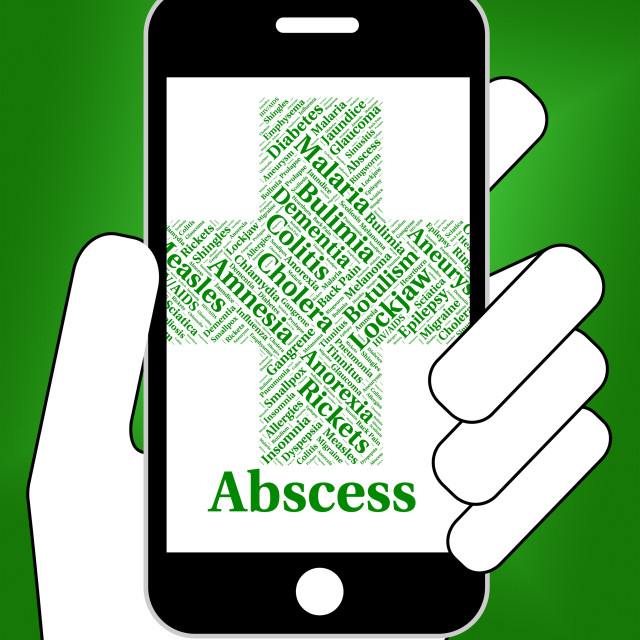 """""""Abscess Illness Indicates Poor Health And Abcesses"""" stock image"""