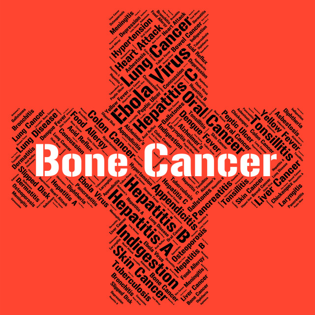 """""""Bone Cancer Represents Poor Health And Afflictions"""" stock image"""