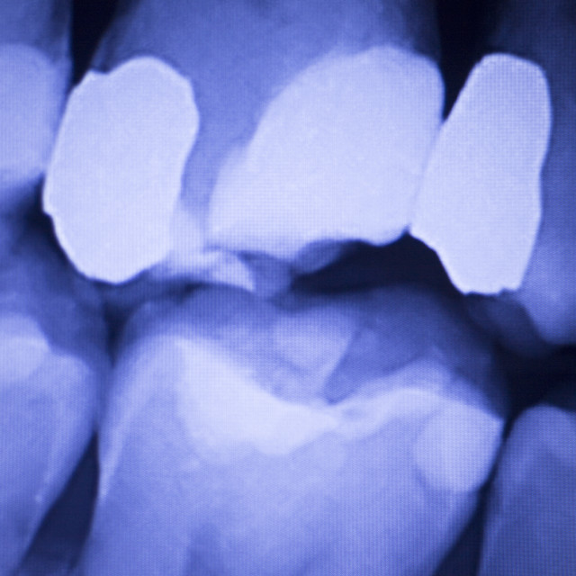 """Dentists dental teeth xray"" stock image"