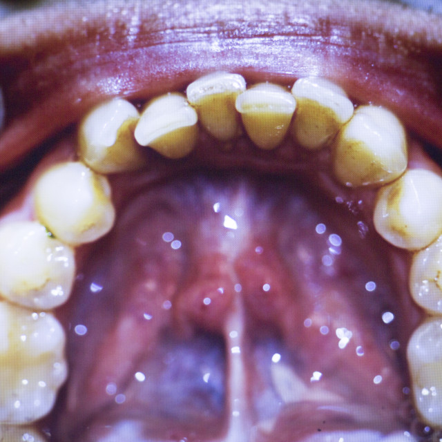 """Dentists dental teeth photo"" stock image"