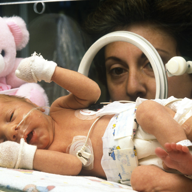 """Premature infant."" stock image"