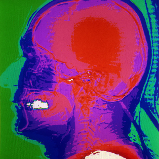 """Color CAT scan of the lateral skull."" stock image"