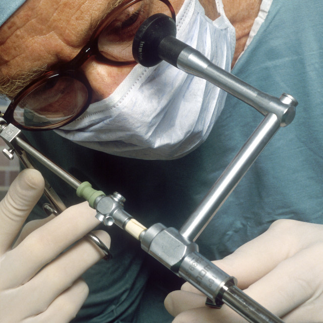 """Surgeon performs laproscopic surgery."" stock image"