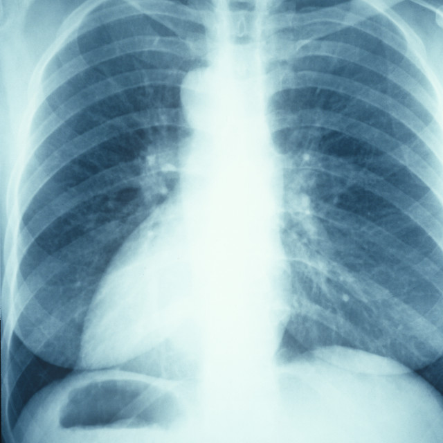 """Chest x-ray"" stock image"
