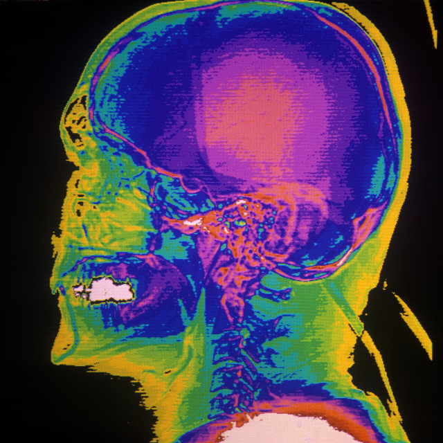 """CAT scan of the lateral skull."" stock image"