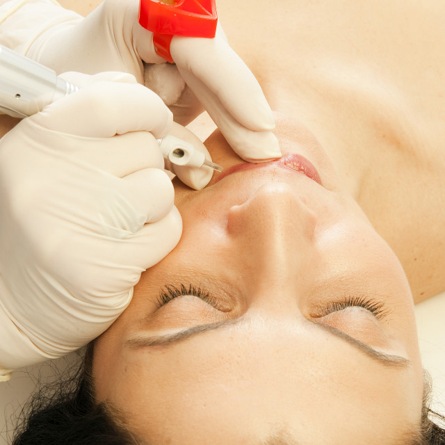 """""""Micropigmentation procedure for the lips, permanent make-up."""" stock image"""