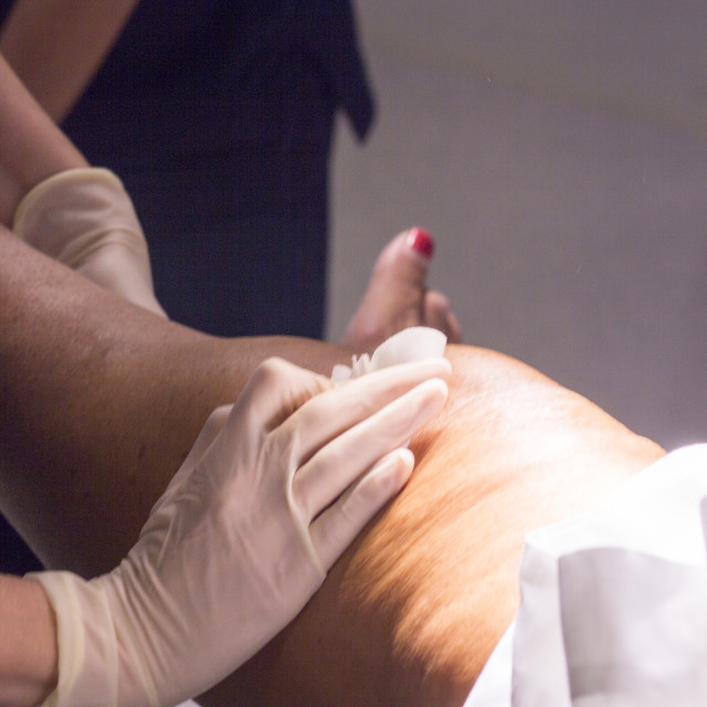 """""""Post anaesthetic knee surgery"""" stock image"""