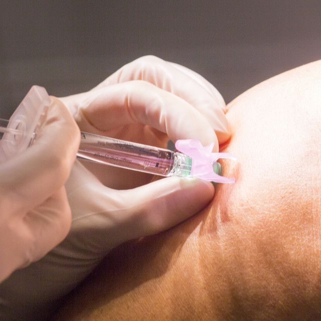 """""""Anaesthetic injection in surgery"""" stock image"""