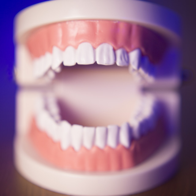 """Denture without transparent orthodontics"" stock image"
