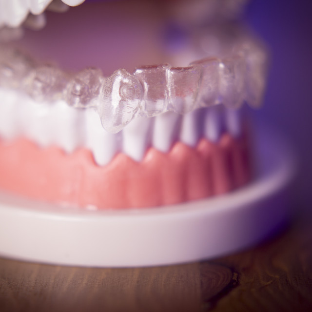 """Denture with transparent orthodontics"" stock image"