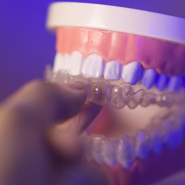 """Denture with transparent orthodontics"" stock image"