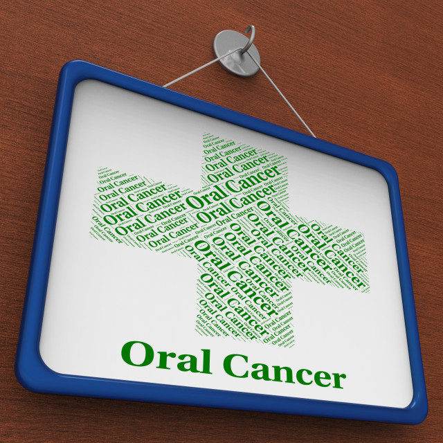 """Oral Cancer Shows Malignant Growth And Attack"" stock image"