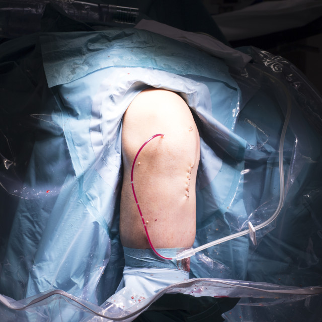 """""""Surgical operation knee surgery"""" stock image"""