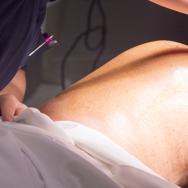 """Surgical sterilising knee surgery"" stock image"