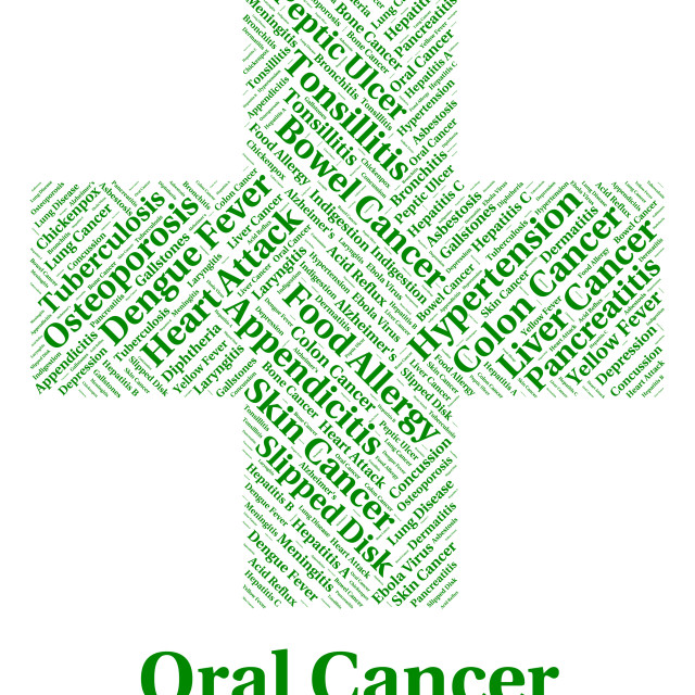 """Oral Cancer Shows Poor Health And Afflictions"" stock image"