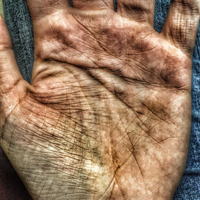 """Dirty palm with Simian line"" stock image"