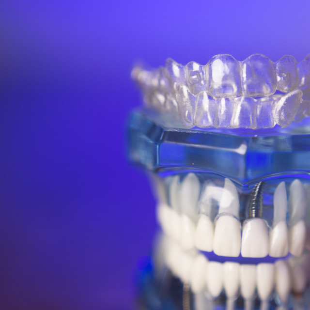 """""""Dental orthodontic invisible teeth correction"""" stock image"""