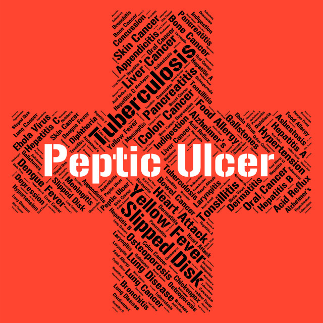 """""""Peptic Ulcer Shows Lower Esophagus And Afflictions"""" stock image"""