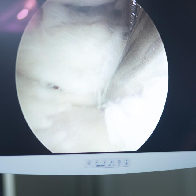 """Arthroscopy surgery screen"" stock image"