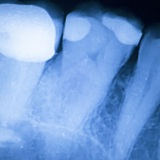 """Tooth filling dental xray"" stock image"