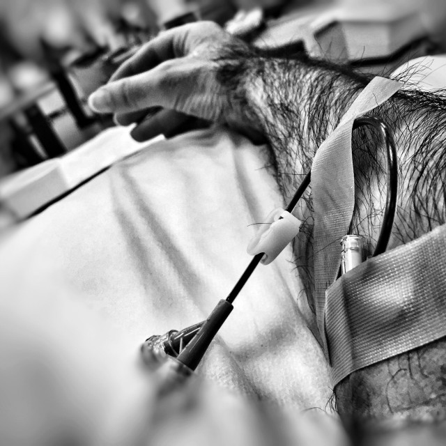 """""""Blood infusion with canular. Arm reaching out. In high contrast black and white"""" stock image"""