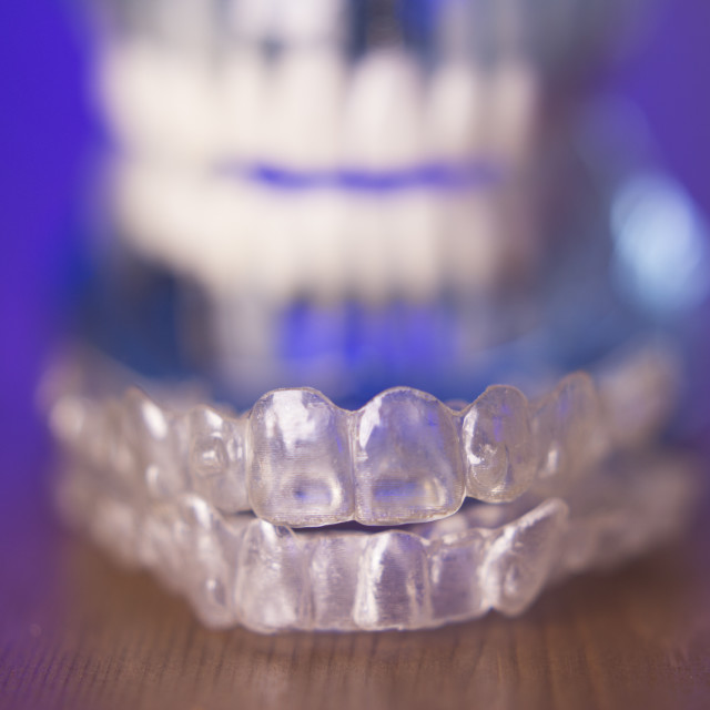 """Dental orthodontic invisible teeth correction"" stock image"