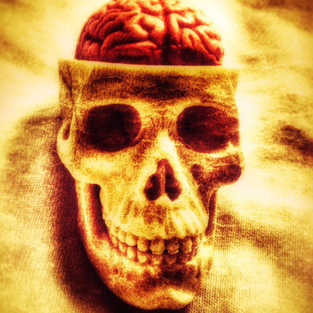 """Skull and brain."" stock image"