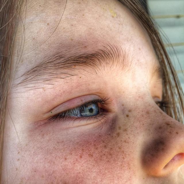 """Little girl freckles."" stock image"