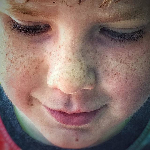 """""""Freckles on a young boys face."""" stock image"""