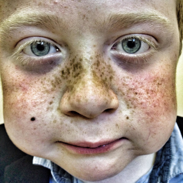 """""""Red haired boy with freckles"""" stock image"""