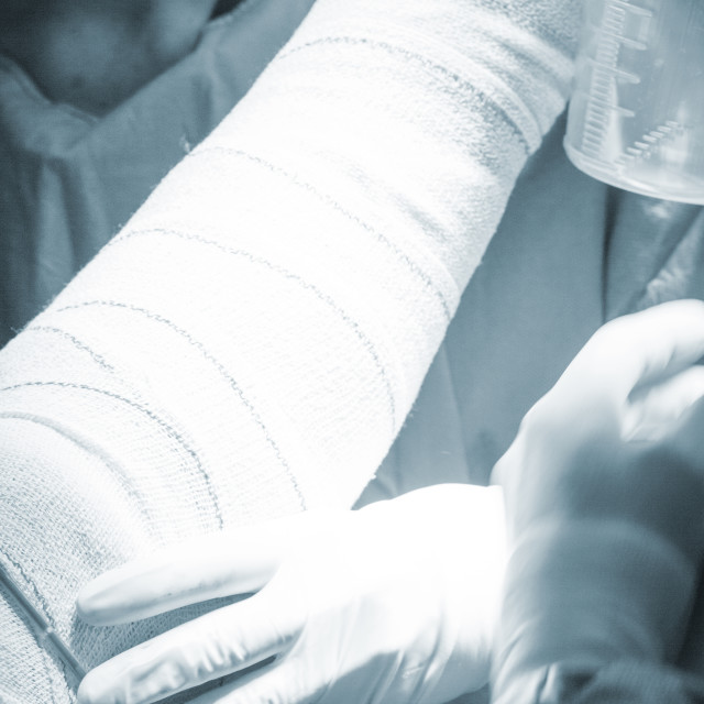 """Bandaging post knee surgery"" stock image"
